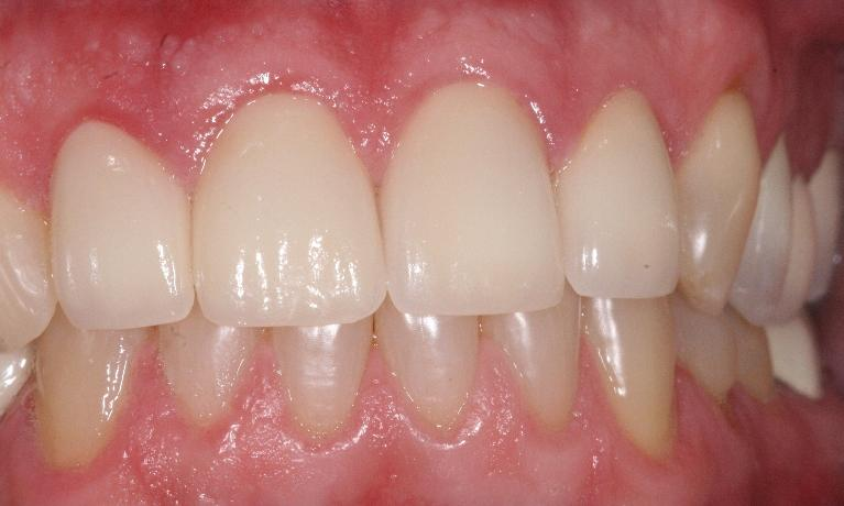 Crowns-and-Veneers-After-Image