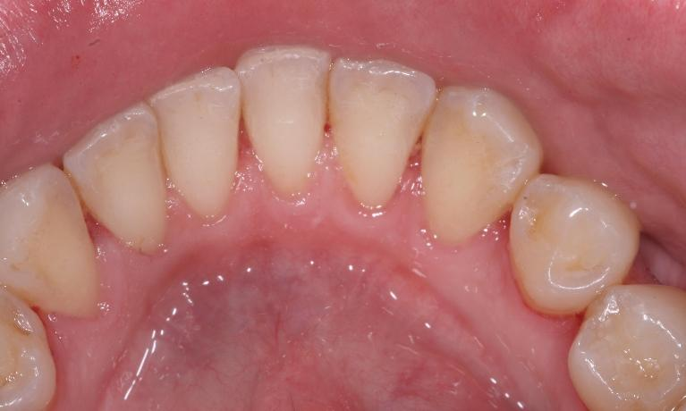 Hygiene-Periodontal-After-Image
