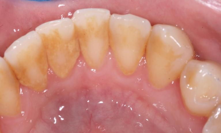Hygiene-Periodontal-Before-Image